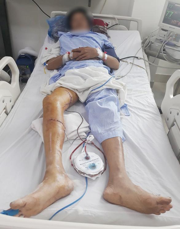 Bác sĩ BV Chợ Rẫy xuống Bến Tre cứu kịp người bị máy cưa cắt vào chân - Ảnh 1.