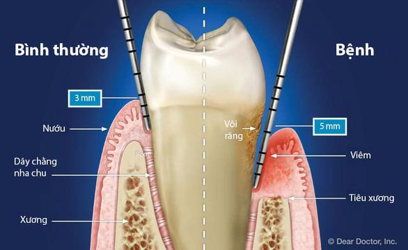 Men vi sinh nha khoa - giải pháp mới cho bệnh viêm nha chu - Ảnh 1.