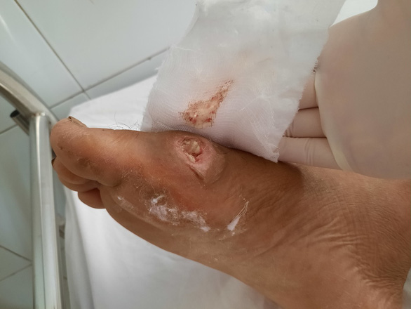 Số ca nhập viện vì vi khuẩn ăn thịt người tăng nhanh ở Đà Nẵng - Ảnh 1.