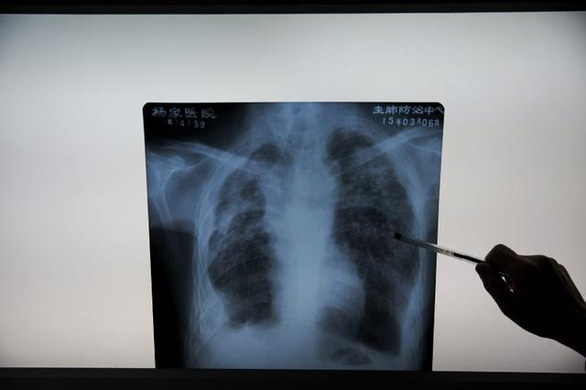 AI phát hiện COVID-19 từ ảnh X-quang phổi nhanh gấp 10 lần chuyên gia - Ảnh 1.