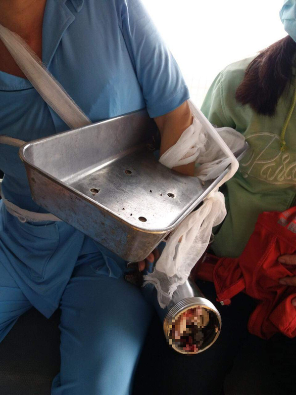 Máy xay thịt cuốn nát bàn tay nhân viên bếp ăn trường mầm non - Ảnh 1.