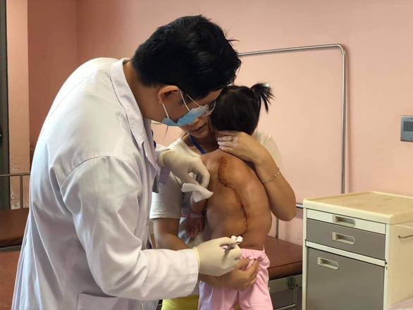 Bé gái 16kg mang trong người khối u 4kg - Ảnh 1.