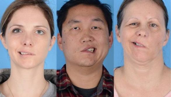 4 người bị giật méo miệng sau tiêm vắc xin COVID-19, sự thật là gì? - Ảnh 1.