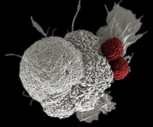 Tin vui: tìm ra chất làm thuốc trị ung thư mới khiến tế bào ung thư 'chết đói' - Ảnh 1.
