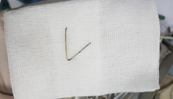 Nội soi lấy đoạn dị vật kim loại hình chữ V trong họng bé gái - Ảnh 1.