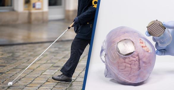 Nghiên cứu mới: Cấy điện cực khôi phục thị lực cho người mù - Ảnh 2.