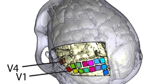 Nghiên cứu mới: Cấy điện cực khôi phục thị lực cho người mù - Ảnh 1.