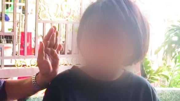 Nữ sinh bị thanh niên đánh dã man sau tai nạn: Phải nghỉ học, khâu 10 mũi trên đầu - Ảnh 1.