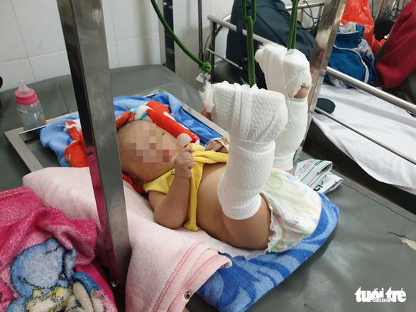 Bé trai 4 tháng tuổi bị cha bạo hành gãy chân, chấn thương đầu... ở mức thương tích 37% - Ảnh 3.