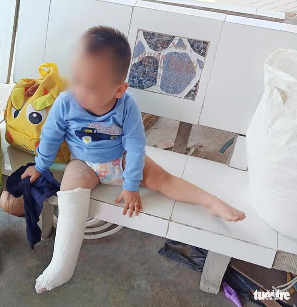 Nghi vấn bé trai 3 tuổi gãy chân bất thường tại điểm giữ trẻ - Ảnh 3.