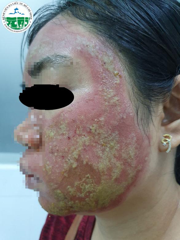Một phụ nữ bị mưng mủ đầy mặt do tai biến lăn kim tại tiệm spa