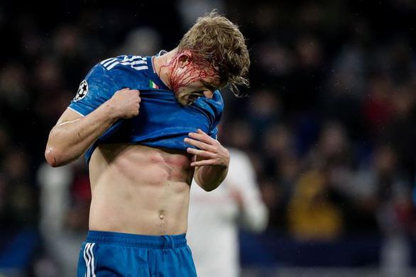 De Ligt được khen vì dù va chạm chảy máu đầu vẫn thi đấu kiên cường - Ảnh 2.