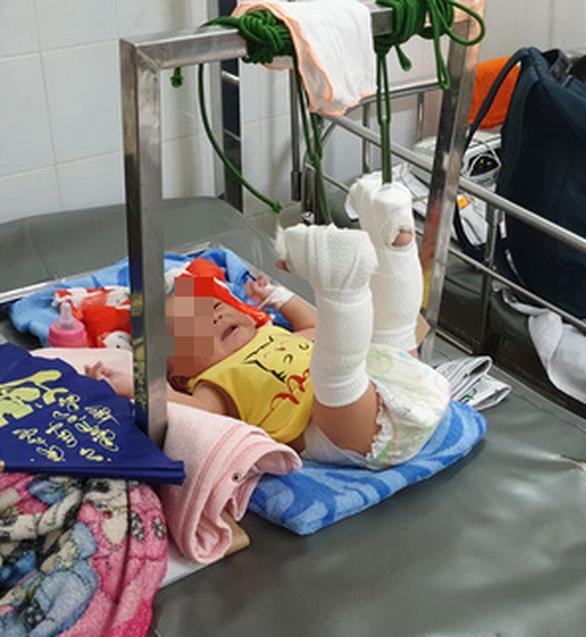 Bé trai 4 tháng tuổi gãy xương, xuất huyết não, bầm nhiều chỗ, người nhà nói té võng - Ảnh 2.
