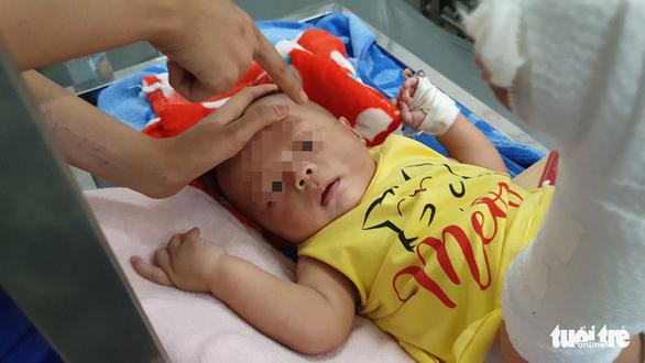 Bé trai 4 tháng tuổi gãy xương, xuất huyết não, bầm nhiều chỗ, người nhà nói té võng - Ảnh 4.