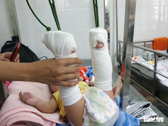 Bé trai 4 tháng tuổi gãy xương, xuất huyết não, bầm nhiều chỗ, người nhà nói té võng - Ảnh 3.