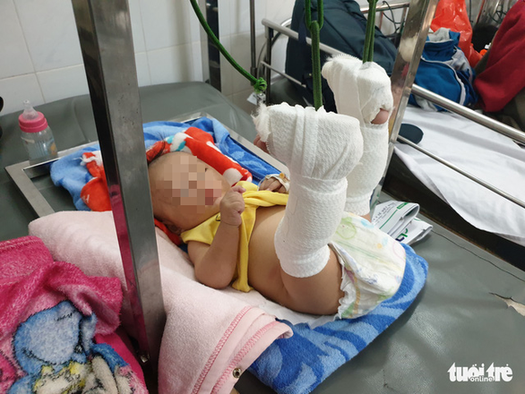 Bắt người cha bạo hành con 4 tháng tuổi xuất huyết não, gãy chân - Ảnh 2.