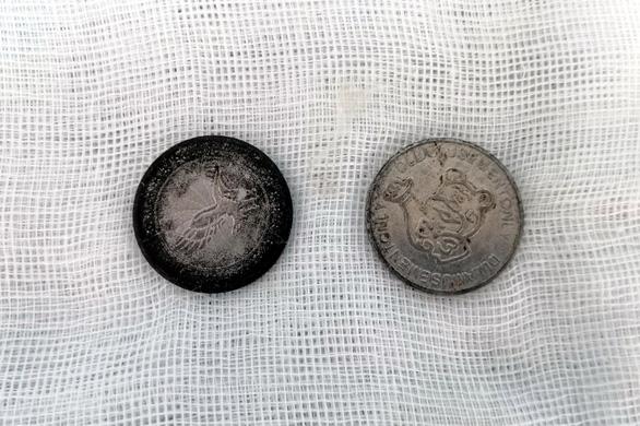 Bé trai 7 tuổi nuốt cùng lúc 2 đồng xu - Ảnh 1.