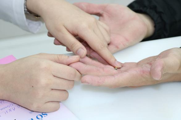 Da tay bị nứt nẻ, chảy máu do rửa dung dịch sát khuẩn quá nhiều - Ảnh 1.