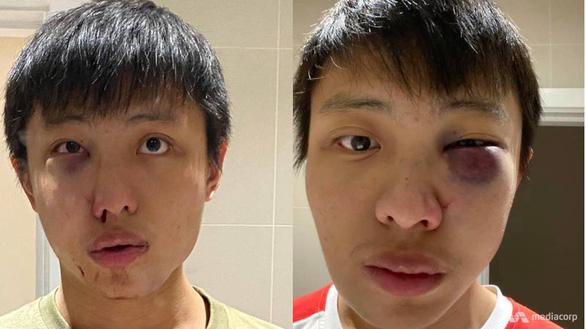 Phản đối phân biệt chủng tộc vì COVID-19, du học sinh Singapore bị hành hung ở London - Ảnh 1.