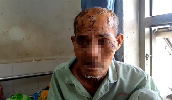 Khởi tố, bắt tạm giam cháu nội chém ông theo hành vi 'giết người' - Ảnh 2.