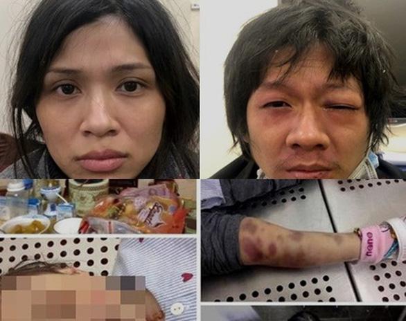 Mẹ và cha dượng đánh con gái 3 tuổi đến chết - Ảnh 1.