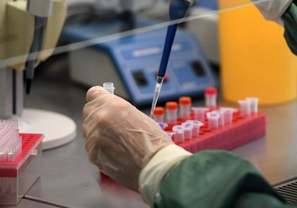 Xét nghiệm thấy virus corona cả khi người nhiễm chưa phát bệnh - Ảnh 1.