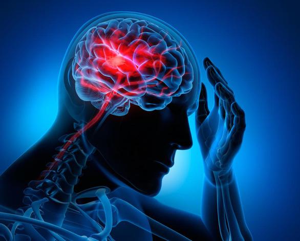 Đột quỵ ở người trẻ tuổi: triệu chứng mắc COVID-19? - Ảnh 1.
