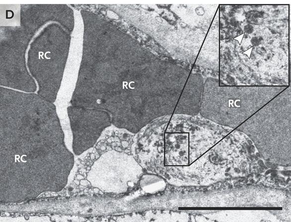 Những phát hiện bất ngờ từ phổi bệnh nhân COVID-19 - Ảnh 4.