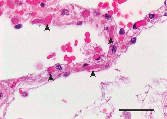 Những phát hiện bất ngờ từ phổi bệnh nhân COVID-19 - Ảnh 1.