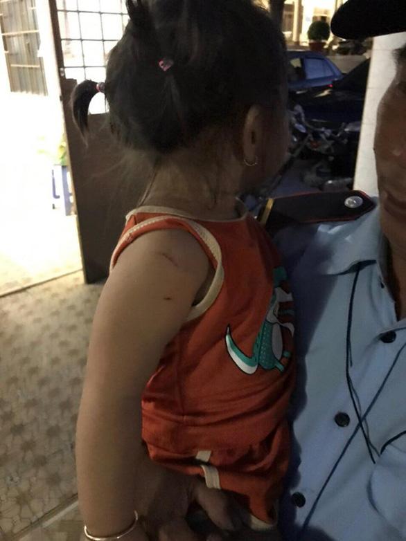 Bắt bé gái 2 tuổi làm con tin, yêu cầu chú bé gái lên xe mua ma túy mới thả - Ảnh 2.