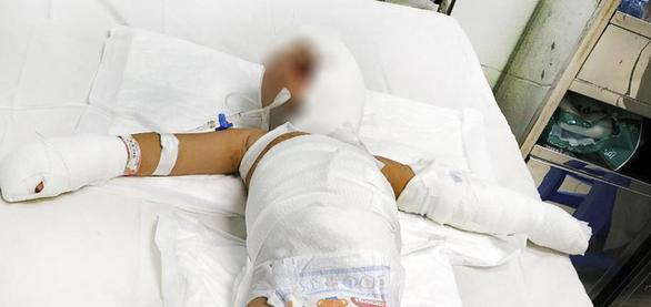 Cứu 2 trẻ bị phỏng nặng trong vụ ném bom xăng ở Bình Dương - Ảnh 1.