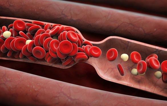 Biến chứng mới khi nhiễm COVID-19: đông máu - Ảnh 2.