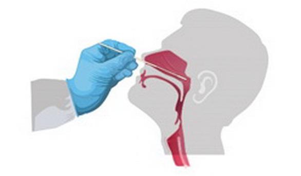 Mũi hay họng chứa nhiều virus SARS-CoV-2 hơn? - Ảnh 2.