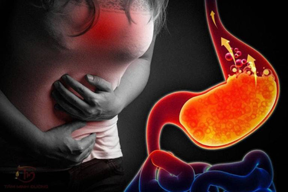 Trào ngược dạ dày thực quản - bệnh lối sống đang gia tăng - Ảnh 1.