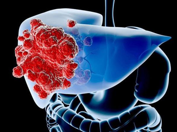 Sự thật về căn bệnh ung thư gan - Ảnh 1.