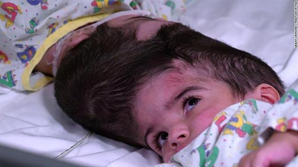 Những ca phẫu thuật tách trẻ song sinh dính nhau kỳ diệu trên thế giới - Ảnh 3.