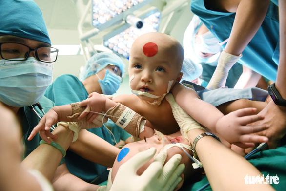 Gần 100 y bác sĩ bắt đầu ca đại phẫu 12 tiếng tách rời cặp song sinh phức tạp nhất Việt Nam - Ảnh 6.