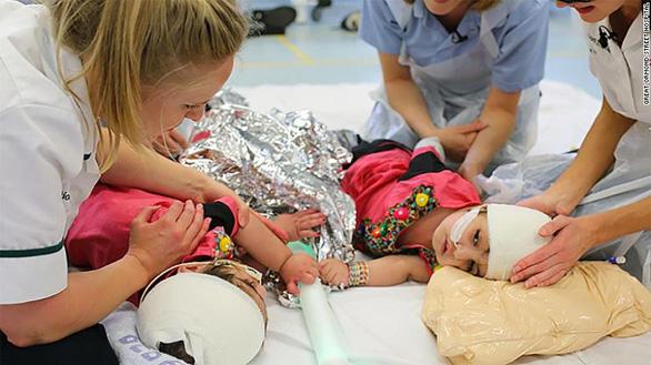 Những ca phẫu thuật tách trẻ song sinh dính nhau kỳ diệu trên thế giới - Ảnh 4.