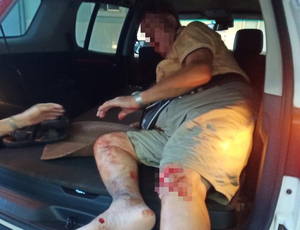 Ông tây 'cực ngầu' chặn xe ngược chiều hôm trước, hôm sau bị tai nạn - Ảnh 1.