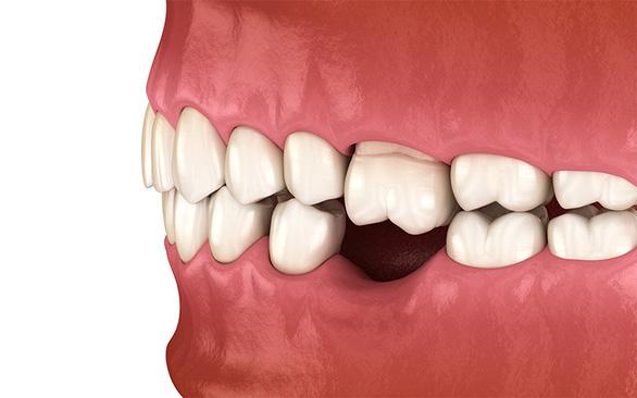 Trồng Implant khôi phục răng vĩnh viễn, tự tin tận hưởng cuộc sống - Ảnh 1.