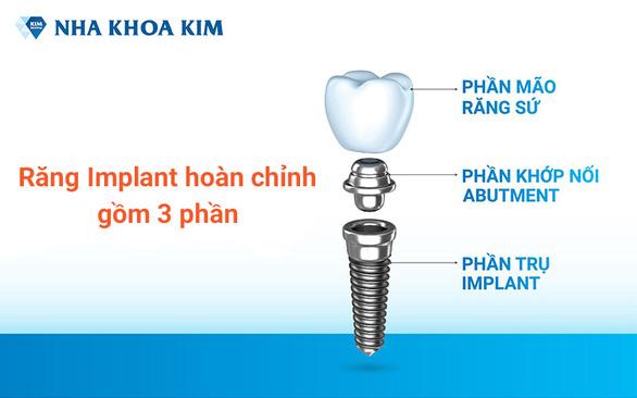Trồng Implant khôi phục răng vĩnh viễn, tự tin tận hưởng cuộc sống - Ảnh 2.