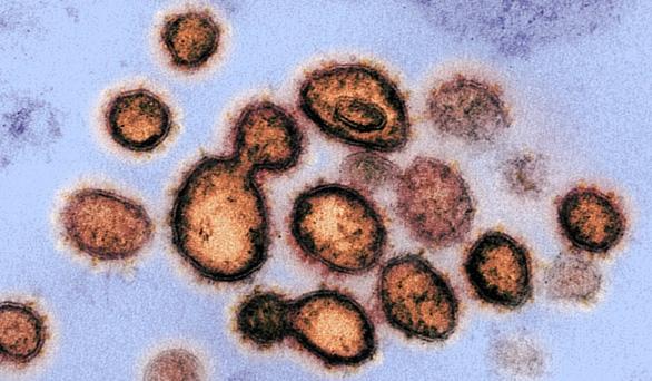 Phản ứng miễn dịch quyết định sự sống hoặc cái chết của bệnh nhân COVID-19 - Ảnh 2.