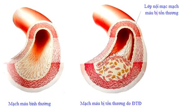 Biện pháp bảo vệ người tiểu đường trước đại dịch - Ảnh 1.