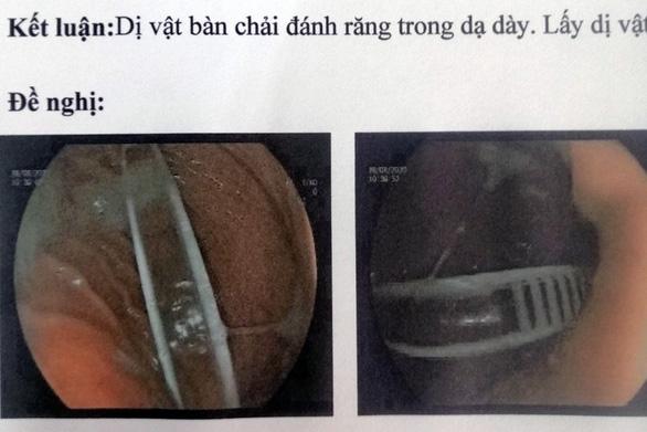 Gắp bàn chải đánh răng dài gần 20cm khỏi dạ dày bé gái 13 tuổi - Ảnh 1.