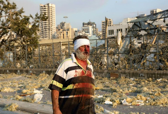 Nổ lớn ở Lebanon, ít nhất 78 người thiệt mạng và gần 4.000 người bị thương - Ảnh 3.