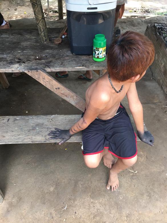 Lễ trưởng thành đầy đau đớn: Cho kiến đạn đốt đến tê liệt, sinh ảo giác - Ảnh 5.