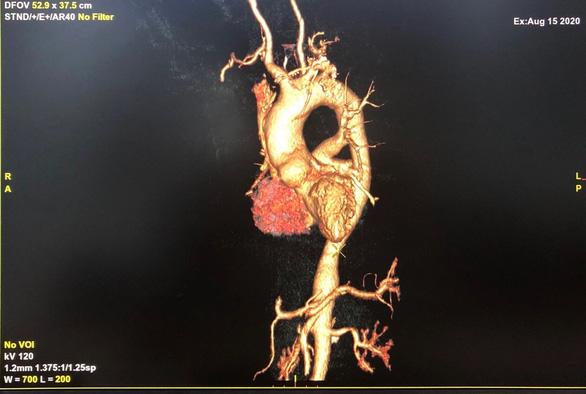 Mắc chứng viêm động mạch Takayasu hiếm gặp lại ngỡ thoái hóa khớp... - Ảnh 2.