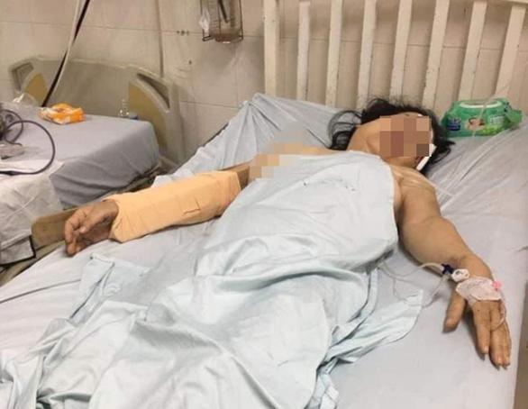 Điều tra vụ người đàn ông dùng thanh gỗ đánh vợ cũ dã man - Ảnh 2.