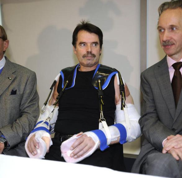 Bệnh nhân đầu tiên trên thế giới được ghép hai cánh tay và hai vai - Ảnh 3.