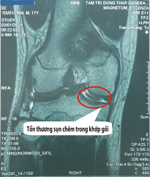 Chụp cộng hưởng từ (MRI) khớp gối: Giải pháp phát hiện tổn thương nhanh, chính xác - Ảnh 2.